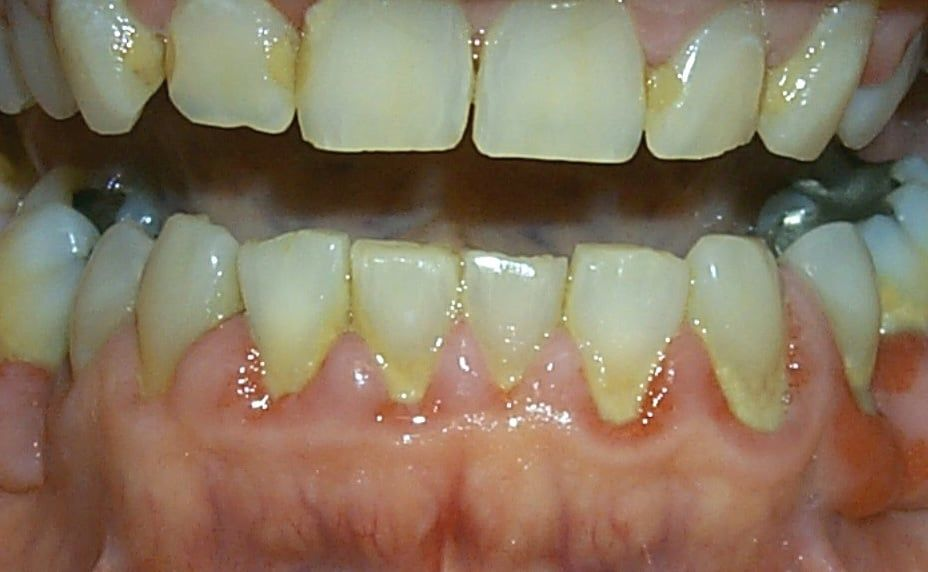 About Periodontal Disease