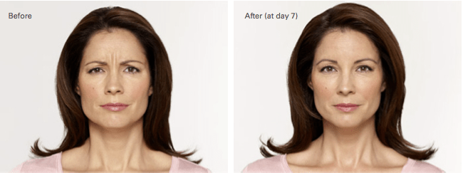 Alecia Botox Before and After photo A