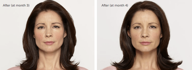 Alecia Botox Before and After photo B