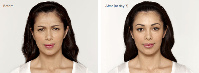 Luz Botox Before and After photo A