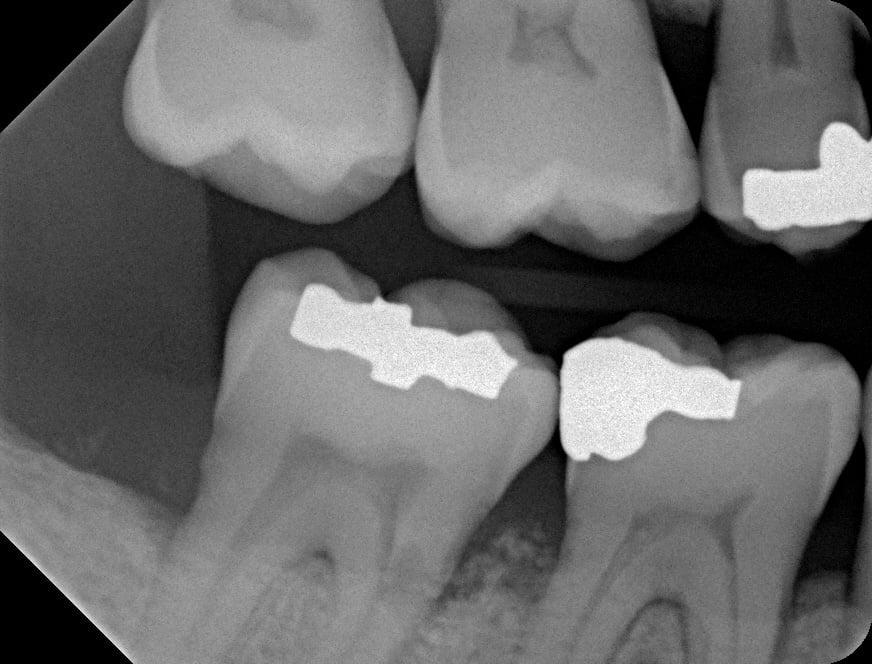 Digital Intra-Oral X-Rays