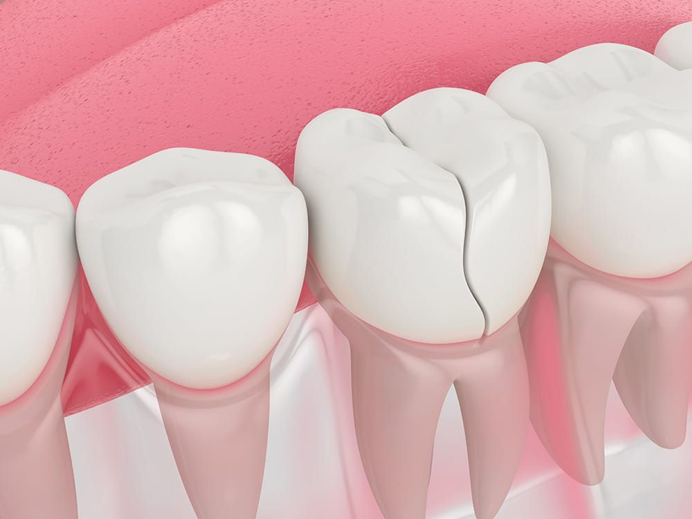 Tooth Fractures - Atlanta Dentist Dr. J. Patrick Posey