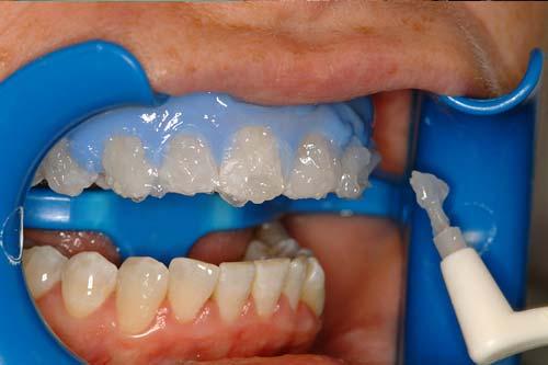 Opalescence Pf 35 Teeth Whitening Sheer White Teeth Oukasfo