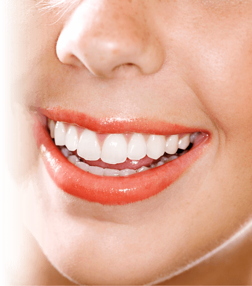 teeth_whitening