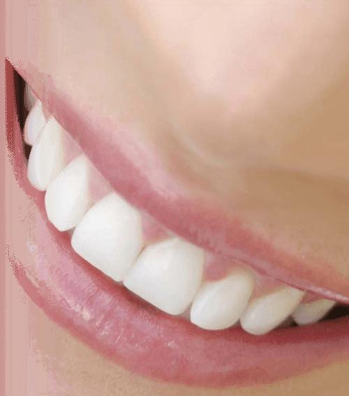 laser_dentistry