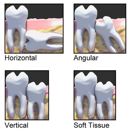 wisdom i teeth ice or swelling use for heat should