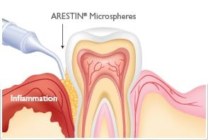 Arestin - Miami Springs Dentist Dr. Francois Zayas