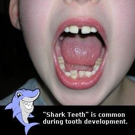 My child is getting shark teeth what can i do?