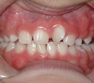 My child has crooked teeth; will he or she need braces?