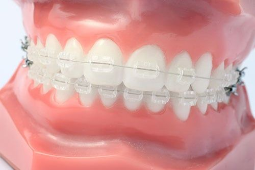 Clear Braces - Miami Springs Dentist Dr. Francois Zayas