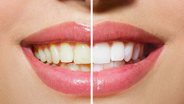 Before & After of Teeth Whitening