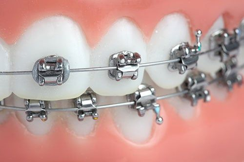 Conventional Braces - Miami Springs Dentist Dr. Francois Zayas