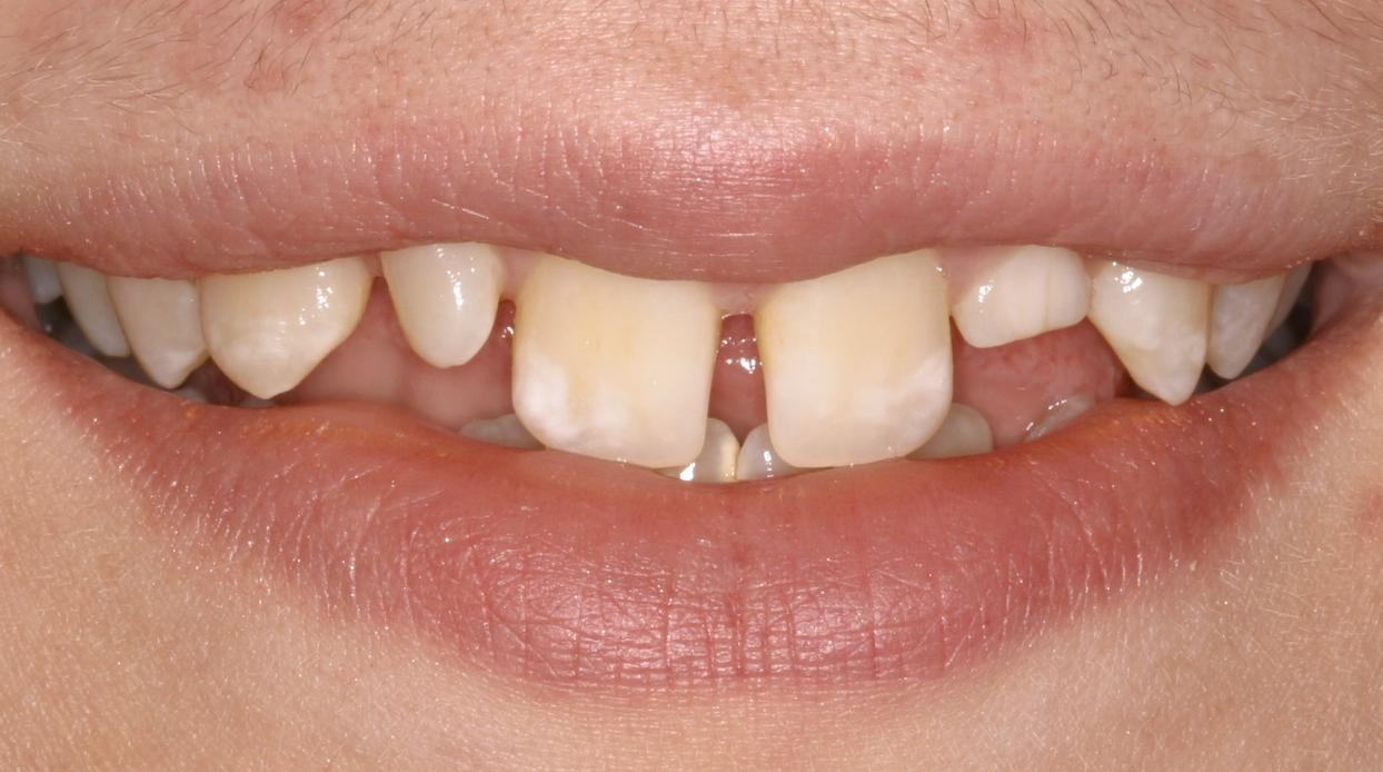 Orthodontic Closing Gaps