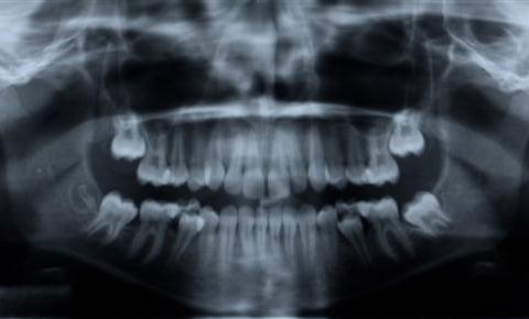 Digital Panoramic X-Rays