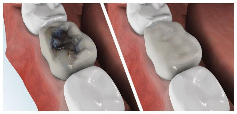 Composite Fillings or Tooth Colored Fillings