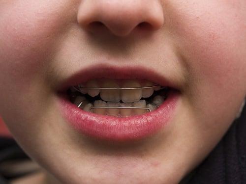 Orthodontics ~ Hayward Dentist ~ Lawrence C  Lee, DDS