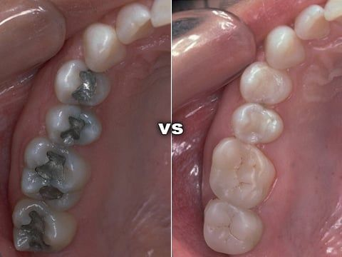 Tooth Colored Fillings - Atlanta Dentist Dr. J. Patrick Posey