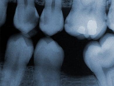 Film X-Rays